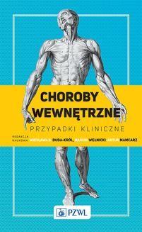 Chomikuj, ebook online Choroby wewnętrzne – przypadki kliniczne. Wiesława Duda-Król