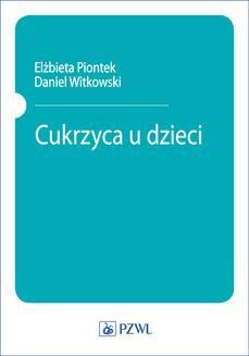 Chomikuj, pobierz ebook online Cukrzyca u dzieci. Daniel Witkowski