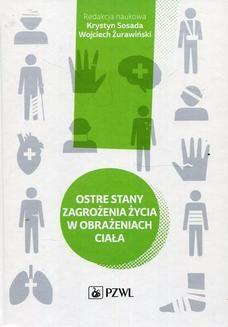 Ebook Ostre stany zagrożenia życia w obrażeniach ciała pdf