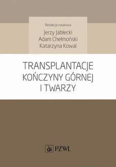 Ebook Transplantacje kończyny górnej i twarzy pdf