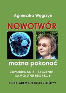 Chomikuj, ebook online Nowotwór można pokonać. Agnieszka Węgrzyn