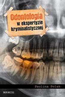 Ebook Odontologia w ekspertyzie kryminalistycznej pdf