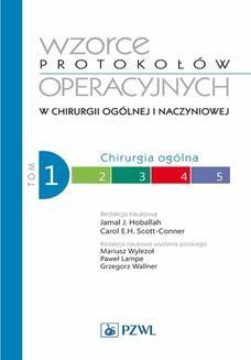 Chomikuj, pobierz ebook online Wzorce protokołów operacyjnych w chirurgii ogólnej i naczyniowej. Tom 1. Carol Scott-Conner