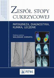 Chomikuj, ebook online Zespół stopy cukrzycowej. Waldemar Karnafel